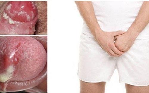 Triệu chứng của bệnh lậu ở nam giới