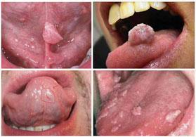 Bệnh sùi mào gà ở miệng, dấu hiệu triệu chứng và cách chữa