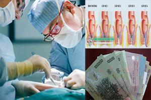 Chi phí phẫu thuật chữa bệnh trĩ hết bao nhiêu tiền?