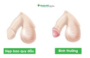 Hẹp bao quy đầu là gì? Cách chữa hẹp bao quy đầu ở đâu an toàn
