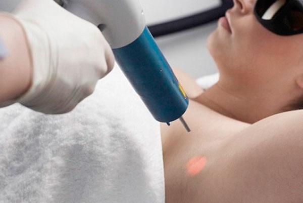 Cách chữa bệnh hôi nách tận gốc bằng tia laser