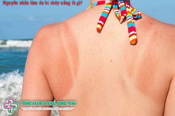 Nguyên nhân làm da bị cháy nắng là gì?
