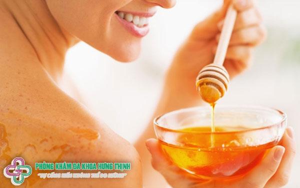 Da bị cháy nắng phải làm thế nào? - Sử dụng mật ong để chữa cháy nắng hiệu quả