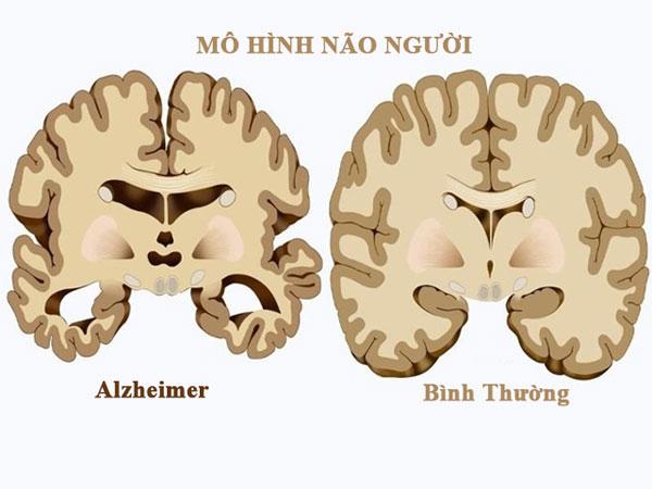 Nguyên nhân gây bệnh Alzheimer là gì?