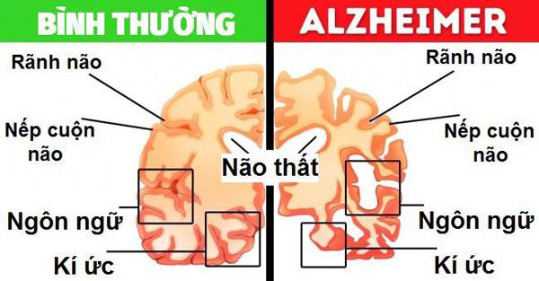 Dấu hiệu nhận biết bệnh Alzheimer