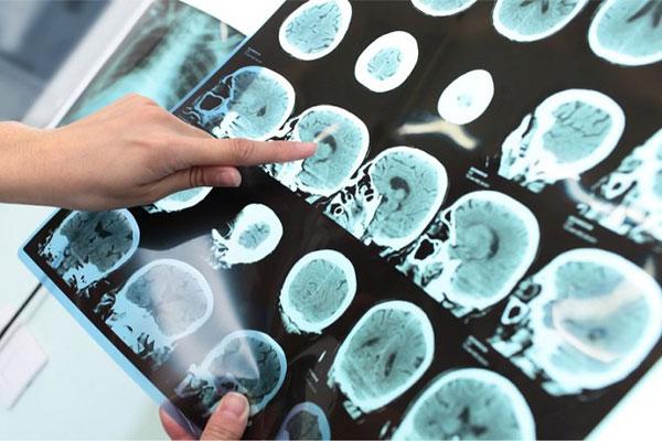 Cách chẩn đoán và điều trị bệnh Alzheimer