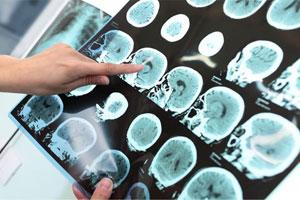 Bệnh Alzheimer là gì dấu hiệu triệu chứng cách chữa