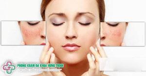 Nám mặt là gì? nguyên nhân và cách chữa trị nhanh nhất tại nhà