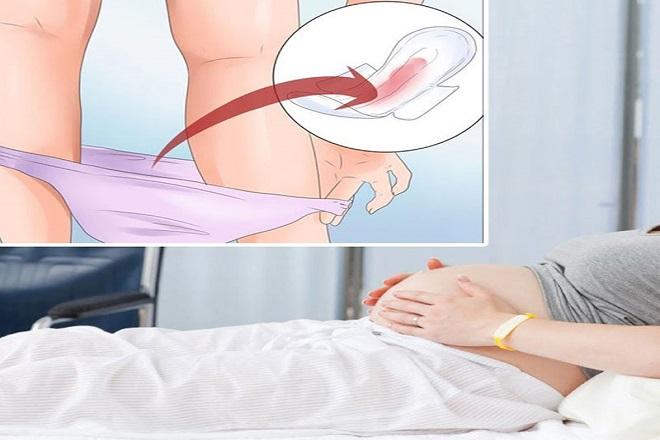 Cách xử trí chảy máu vùng kín
