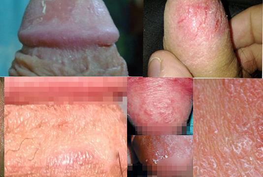Hiện tượng nứt da ở bao quy đầu nam giới