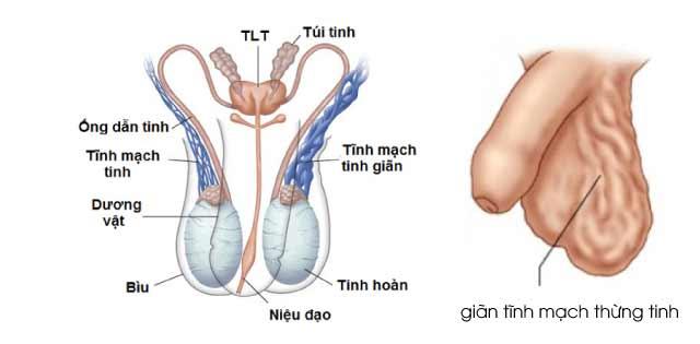 Tự chữa giãn tĩnh mạch thừng tinh có được không