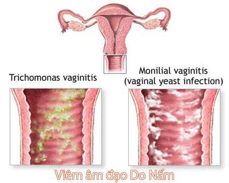 Hình ảnh bệnh vùng kín ở nữ như thế nào
