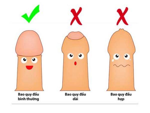 Xuất tinh sớm sau khi cắt bao quy đầu là bị gì