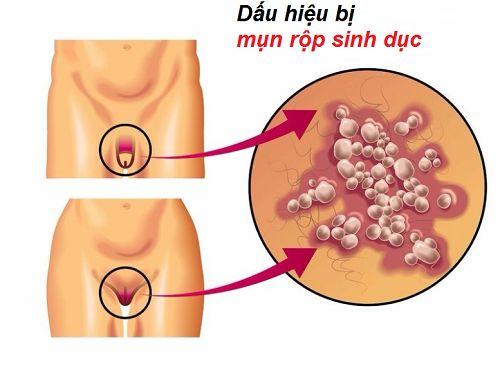 Cách chữa mụn rộp sinh dục tại nhà là gì