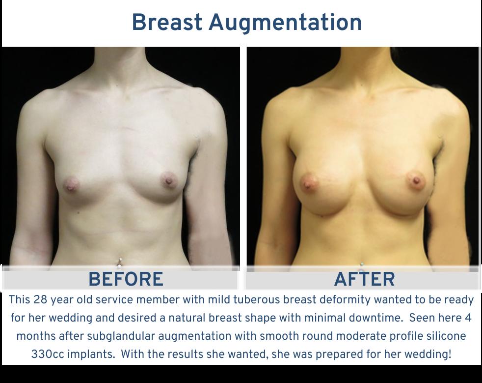 Breast Augmentation San Antonio TX - 28 year old service member with mild tuberous breast deformity frontal