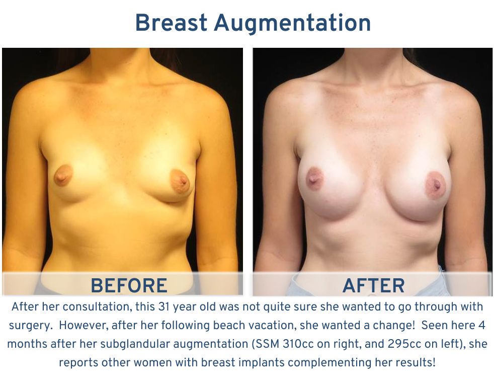 Breast Augmentation San Antonio TX - 31 year old ready for beach vacation frontal