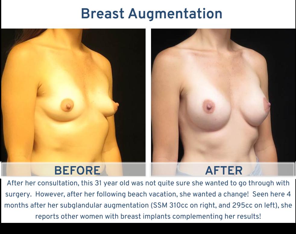 Breast Augmentation San Antonio TX - 31 year old ready for beach vacation left oblique