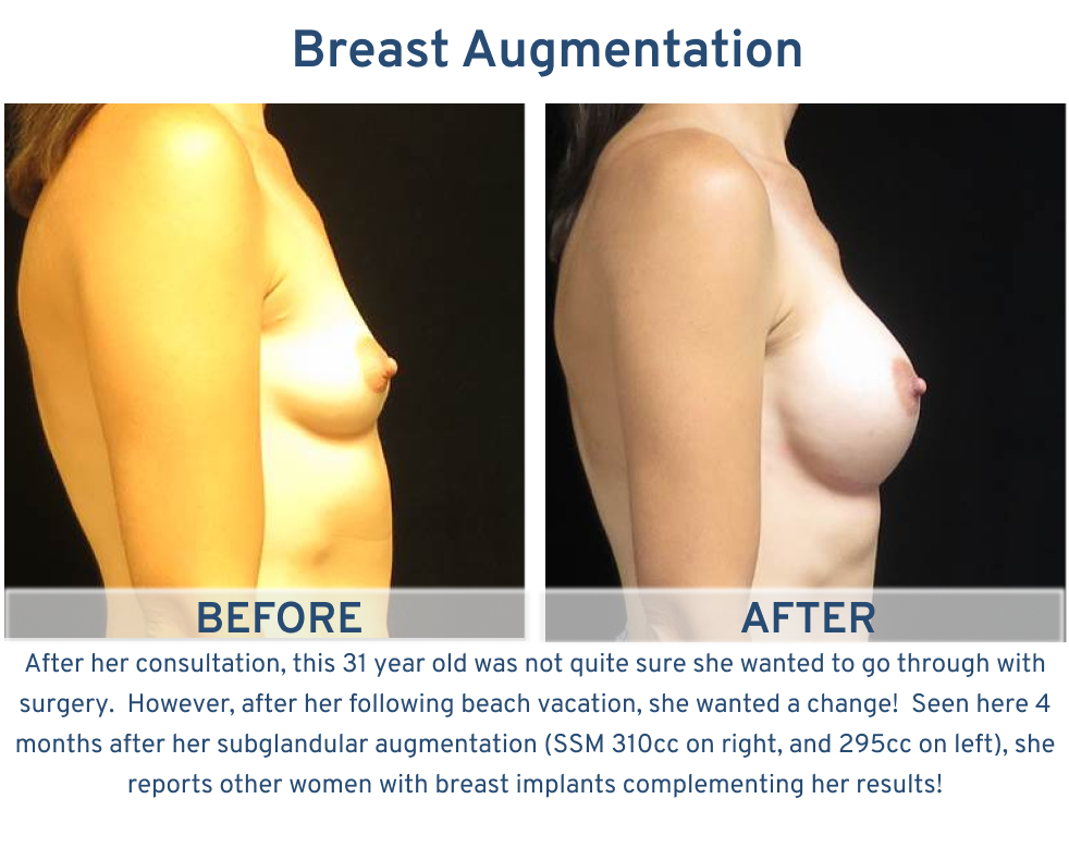 Breast Augmentation San Antonio TX - 31 year old ready for beach vacation side
