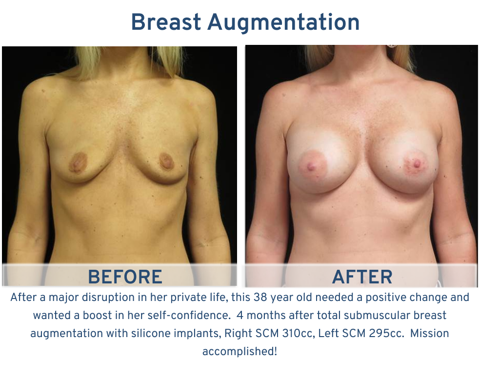 Breast Augmentation San Antonio TX - 38 year old boost self confidence breast augmentation frontal