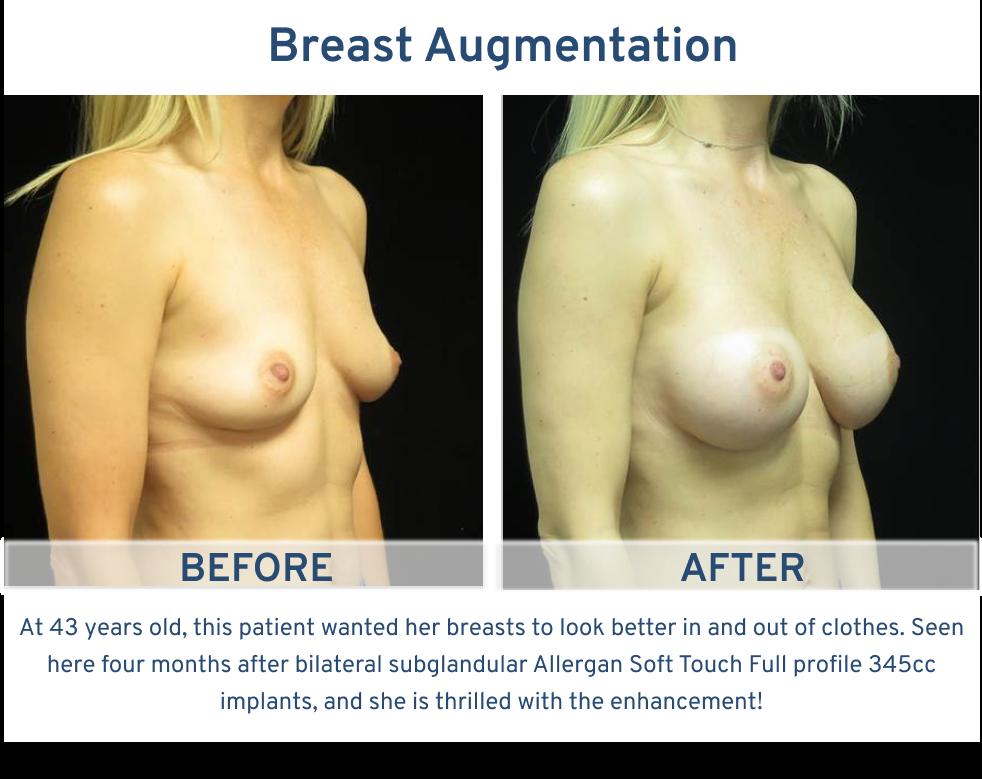 Breast Augmentation San Antonio TX - 38 year old boost self confidence breast augmentation right oblique