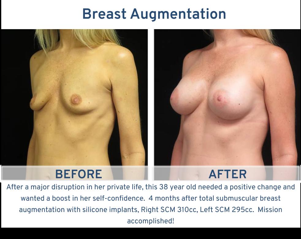Breast Augmentation San Antonio TX - 38 year old boost self confidence breast augmentation left oblique