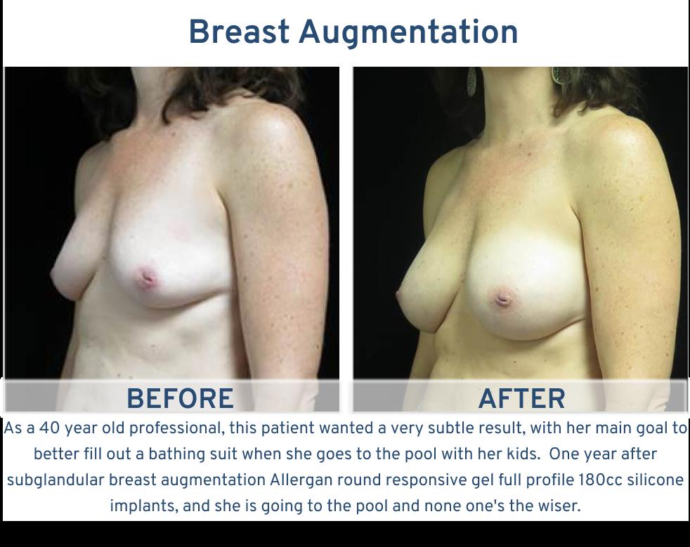 Breast Augmentation San Antonio TX - 40 year old with subtle breast augmentation right oblique