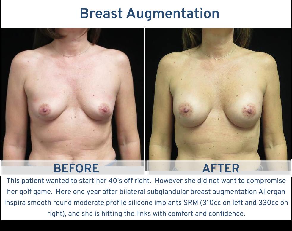 Breast Augmentation San Antonio TX - 40 year old year old golfer frontal