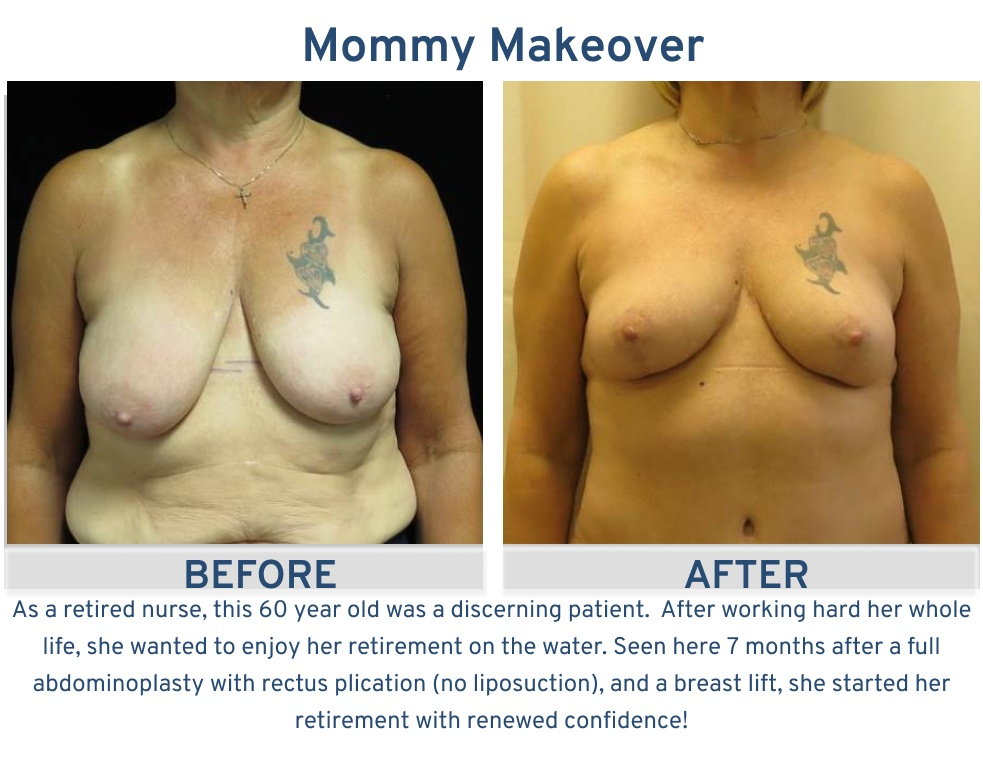 Mommy Makeover San Antonio TX - 60 year old enjoy retirement