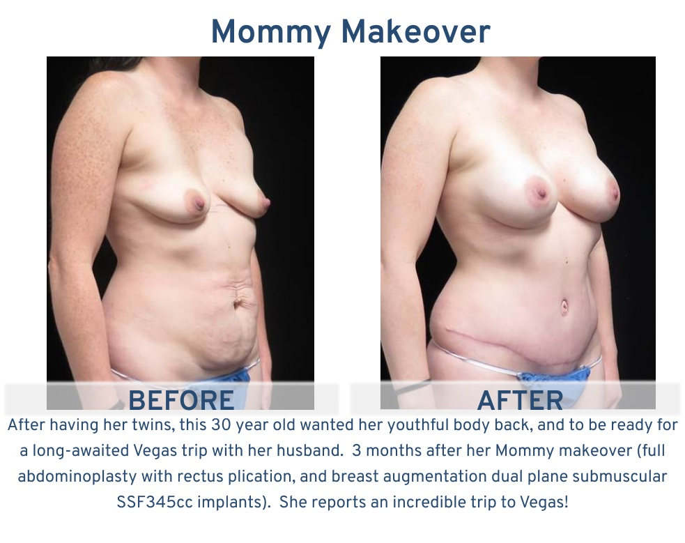 Mommy Makeover San Antonio TX - 30 year old mother of twins oblique