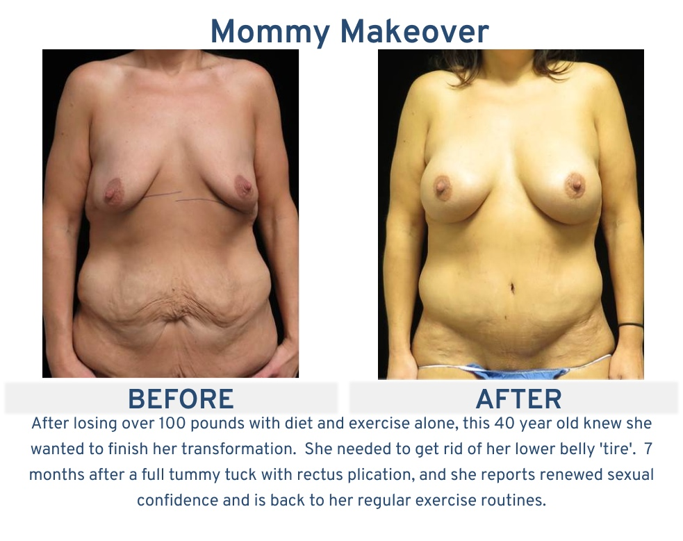 Mommy Makeover San Antonio TX - 40 year old 100 lb weight loss