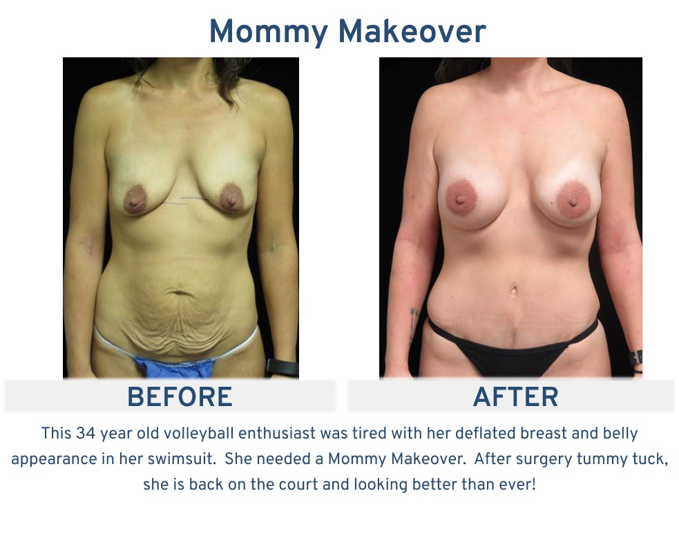 Mommy Makeover San Antonio TX - 34 year old volleyball enthusiast