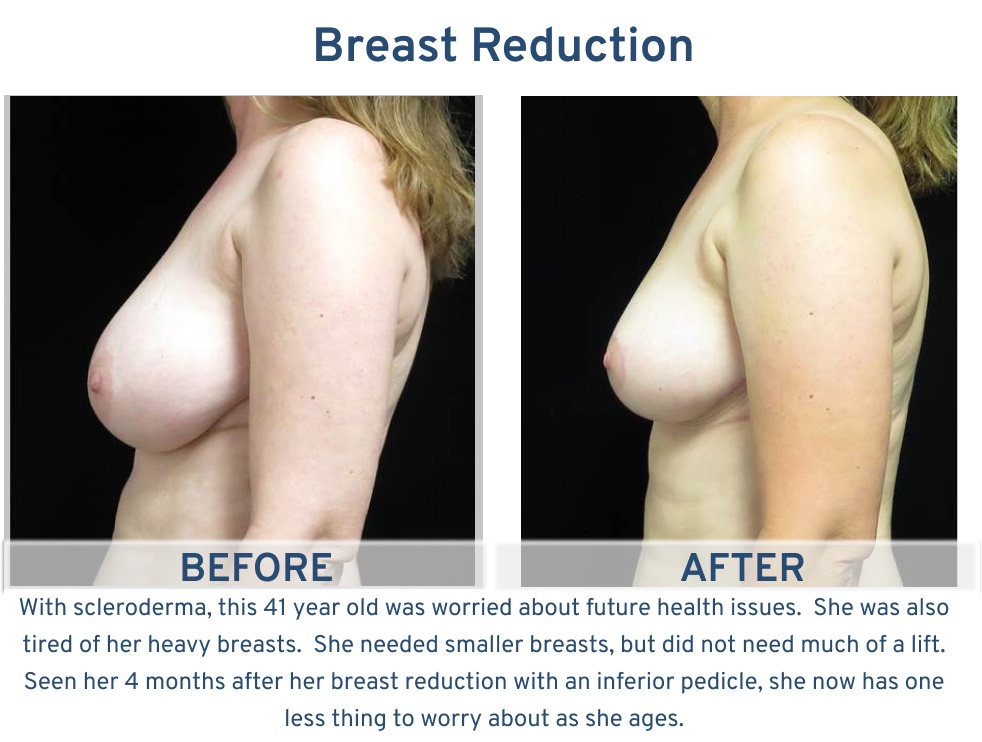 Breast Reduction San Antonio TX - 41 year old scleroderma side