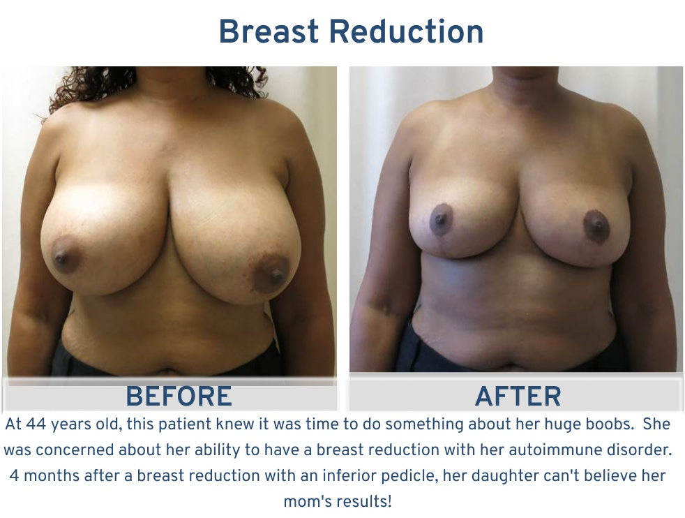 Breast Reduction San Antonio TX - 44 year old autoimmune front