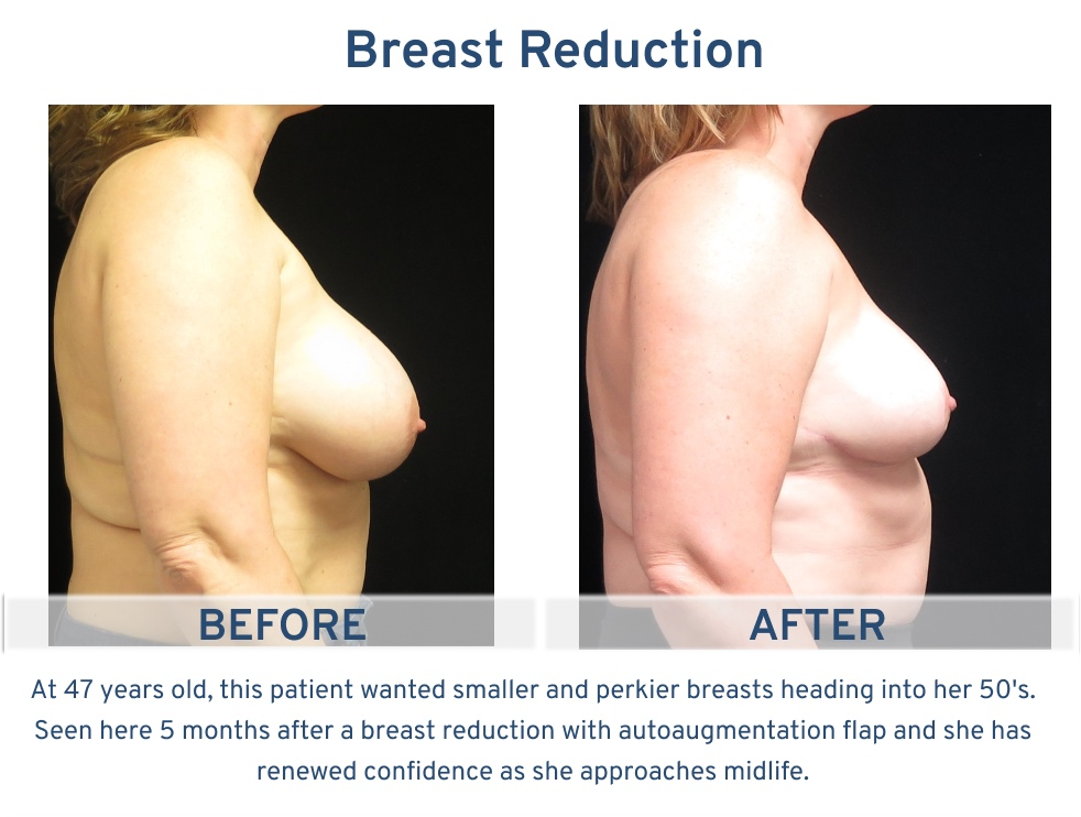 Breast Reduction San Antonio TX - 47 year old patient 5 mo side 2