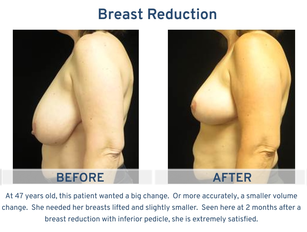 Breast Reduction San Antonio TX - 47 year old patient side