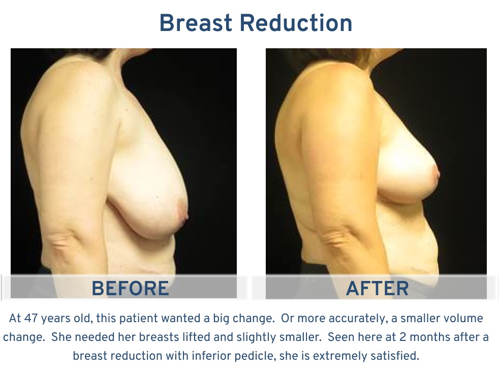 Breast Reduction San Antonio TX - 47 year old patient side 2