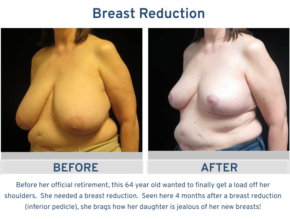 Breast Reduction San Antonio TX - 64 year old load off oblique