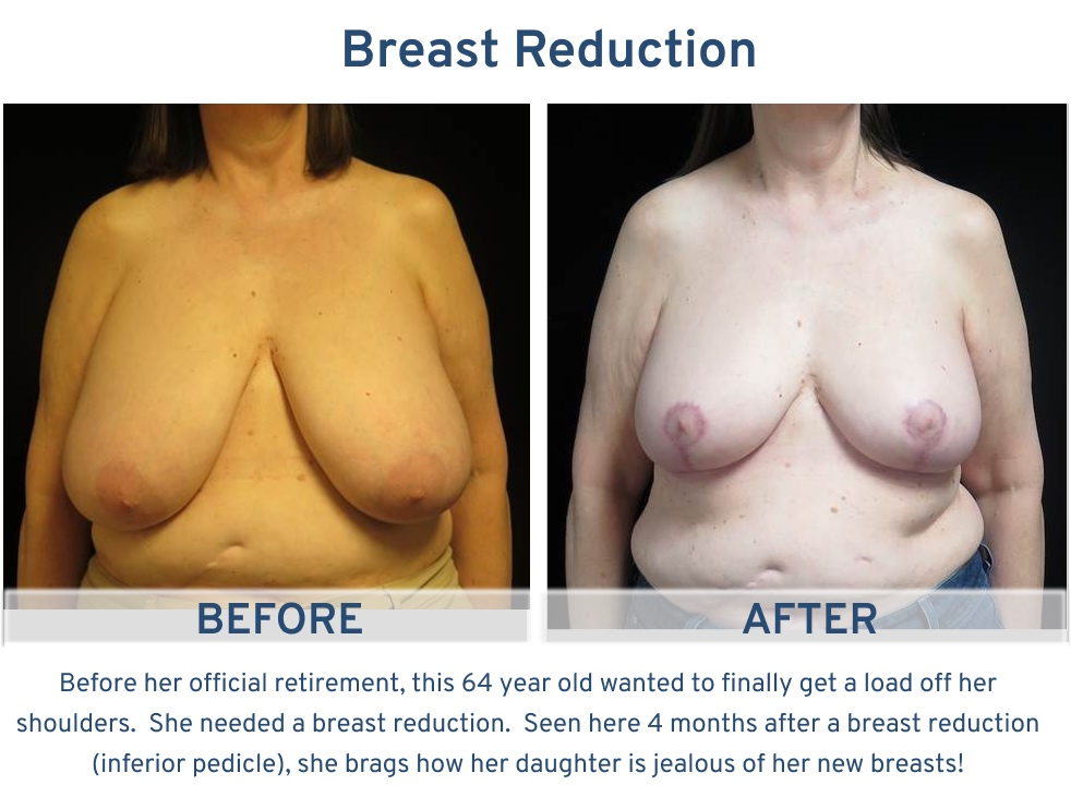 Breast Reduction San Antonio TX - 64 year old patient load off