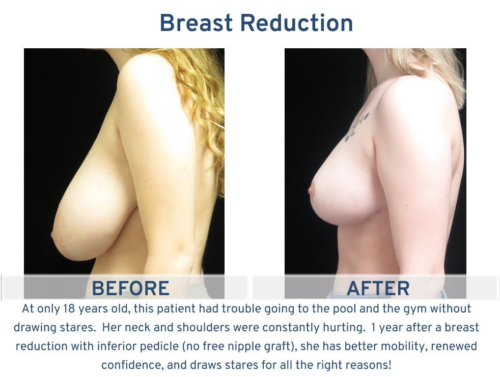 Breast Reduction San Antonio TX - 18 year old pool side