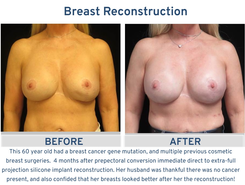 Breast Reconstruction San Antonio TX - 60 year old with previous cosmetic surgeries