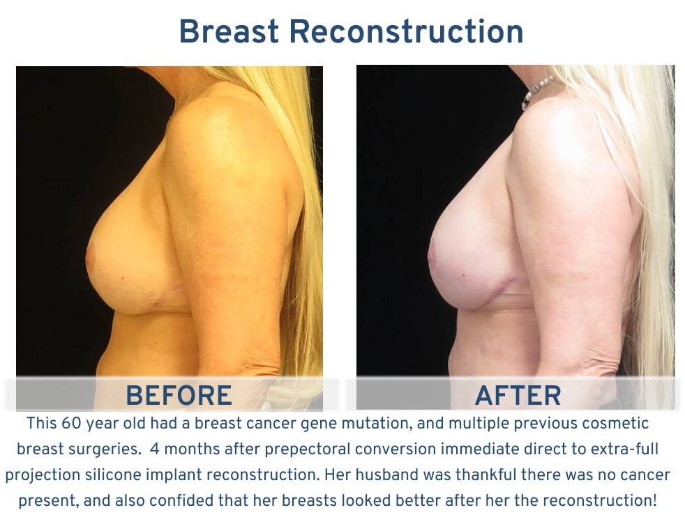 Breast Reconstruction San Antonio TX - 60 years old with previous cosmetic surgeries side