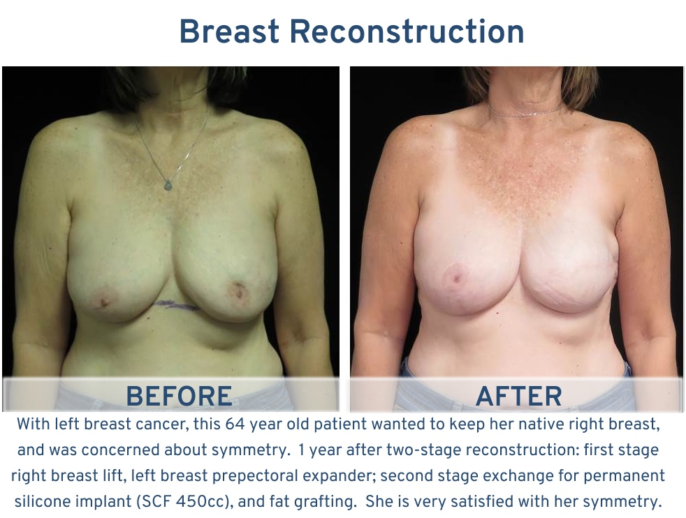 Breast Reconstruction San Antonio TX - 64 year old symmetry with native right breast