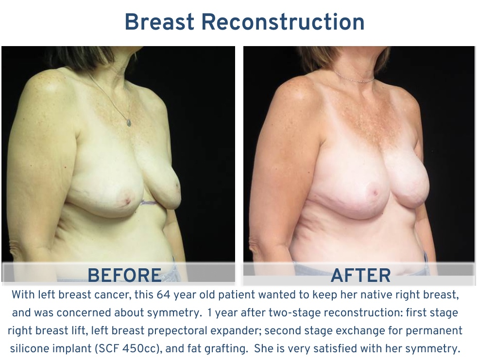 Breast Reconstruction San Antonio TX - 64 year old with native breast