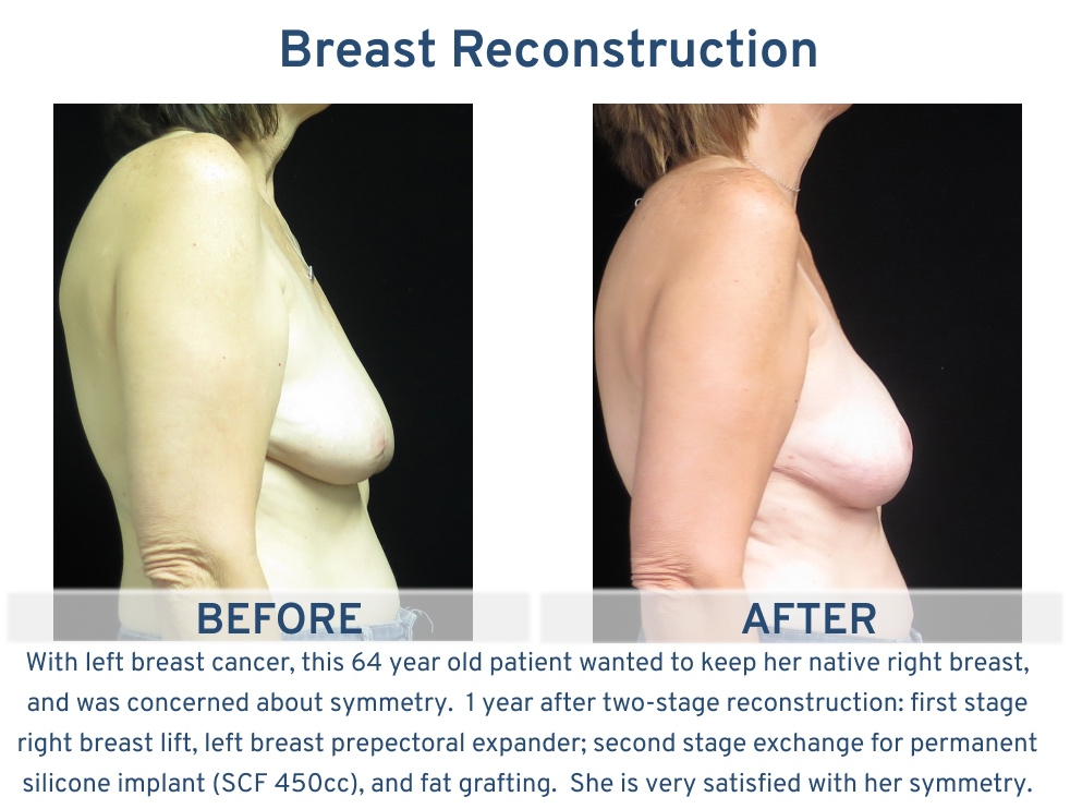 Breast Reconstruction San Antonio TX - 64 year old with native breast side