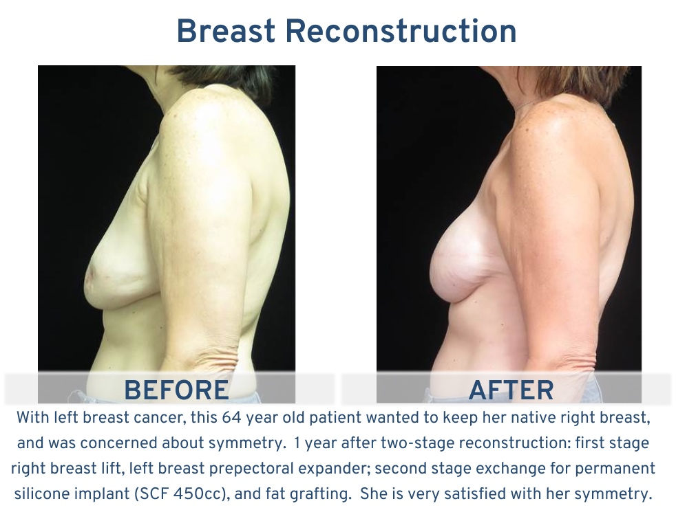 Breast Reconstruction San Antonio TX - 64 year old with native breast side 3