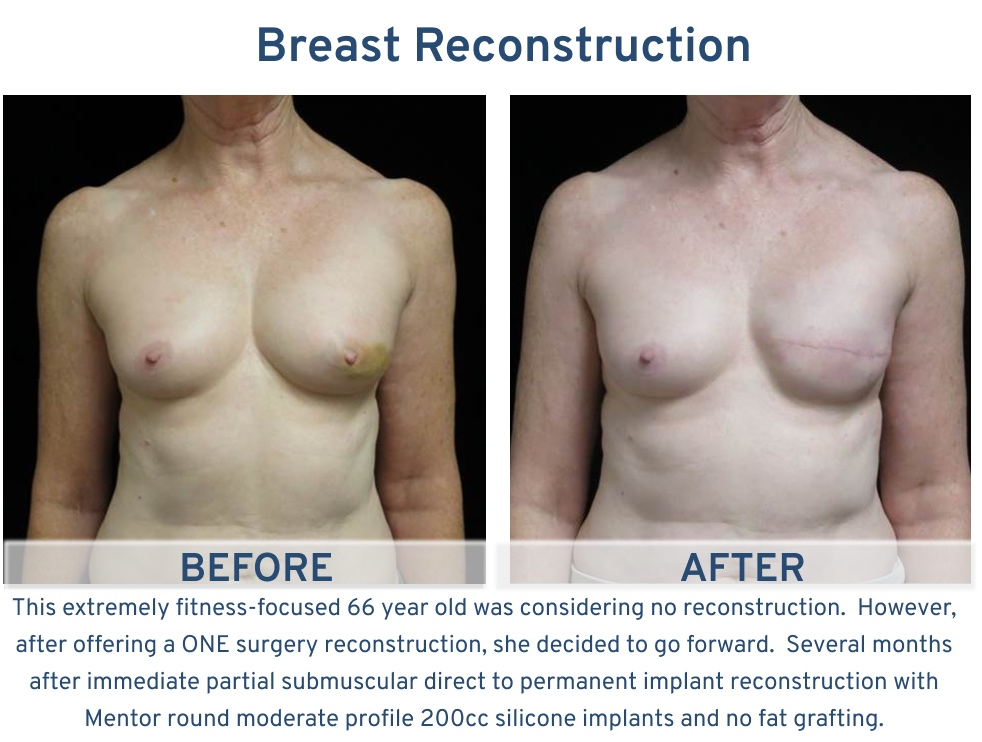 Breast Reconstruction San Antonio TX - 66 year old considering no reconstruction