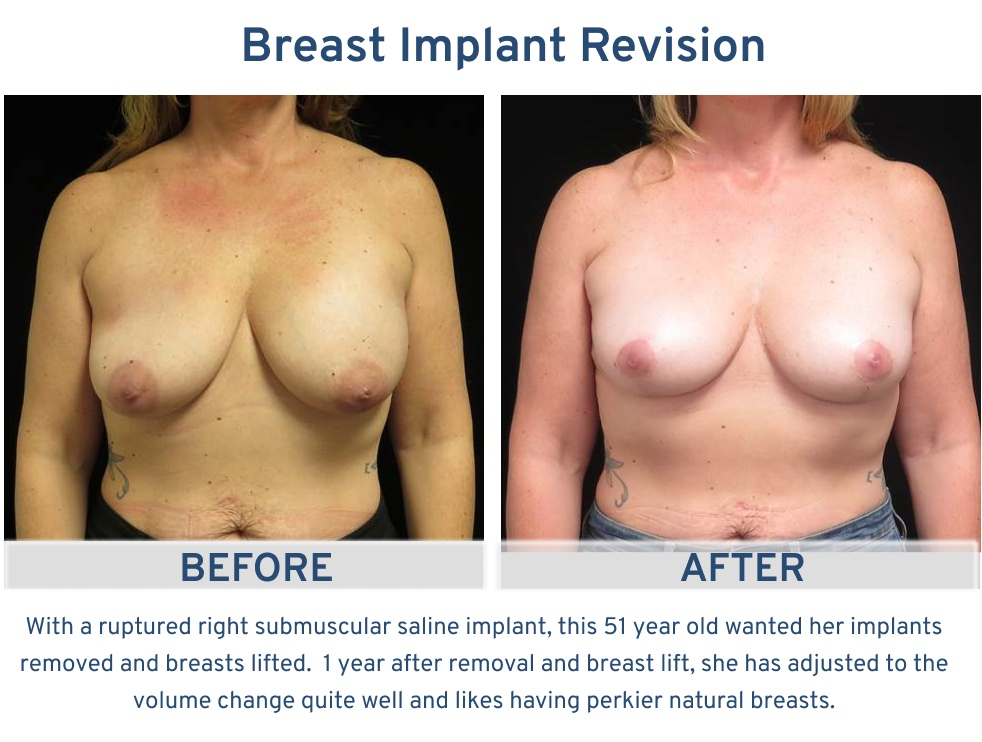 Alamo Plastic Surgery Breast Implant Revision San Antonio TX - 51 year old implant removal and lift