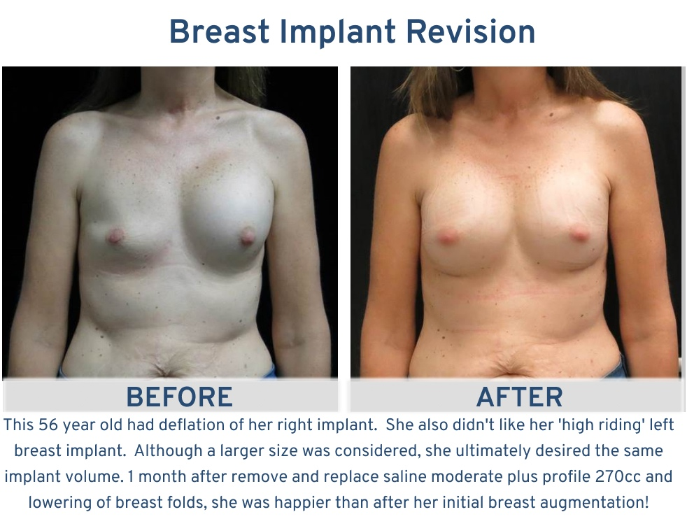 Alamo Plastic Surgery Breast Implant Revision San Antonio TX - 56 year old implant deflation correction