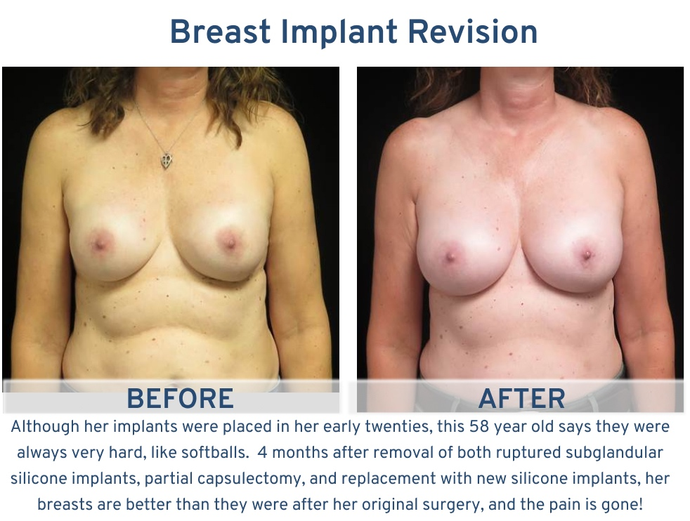 Alamo Plastic Surgery Breast Implant Revision San Antonio TX - 58 year old hard implants