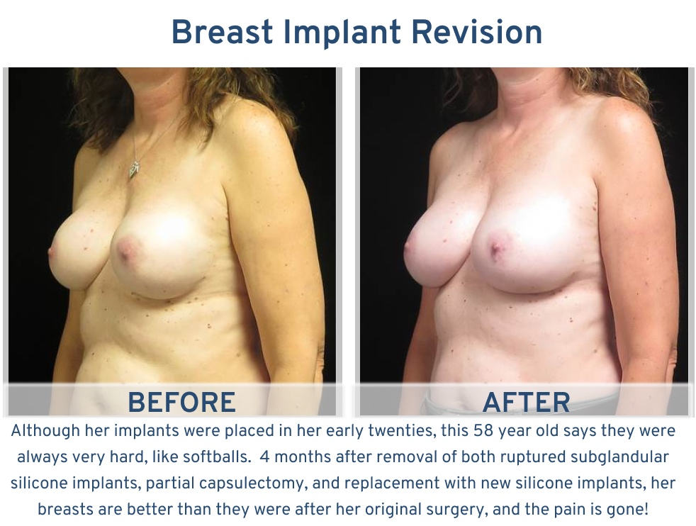 Alamo Plastic Surgery Breast Implant Revision San Antonio TX - 58 year old hard implants oblique